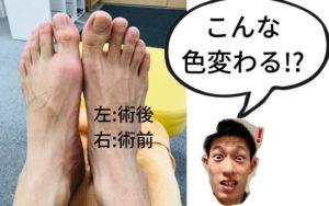 痛い足つぼの効果